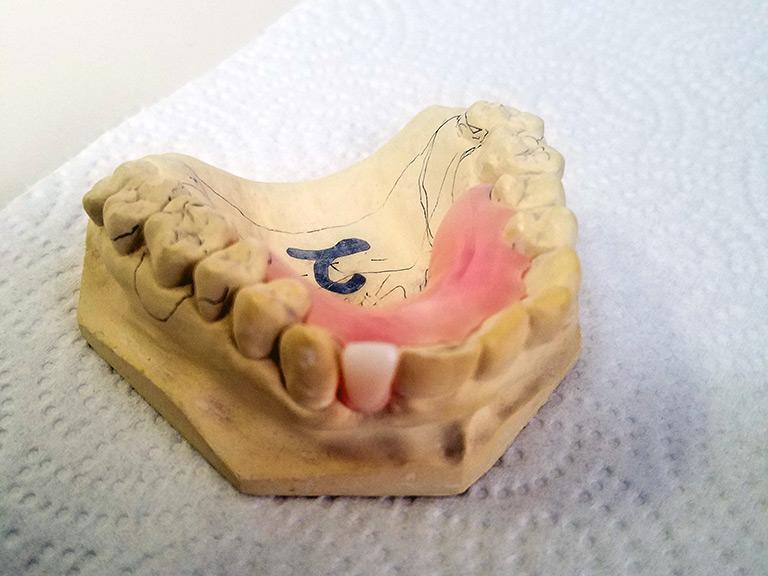 Dentures Direct Maine Dentures Full Dentures Partial Dentures